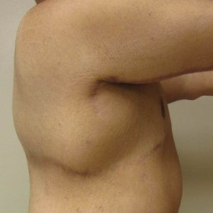 manhattan gynecomastia surgery after 7